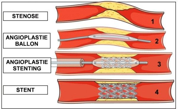 Angioplastie et stenting coronaire