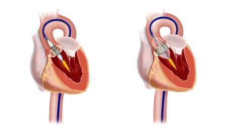 remplacement valvulaire aortique percutané