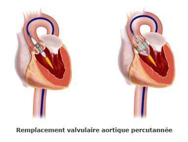 Remplacement des valves aortique percutaanée