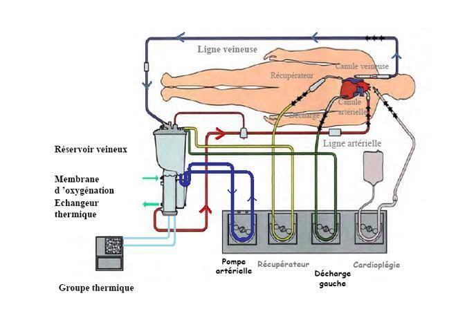 Schéma circulation extra-corporelle du sang